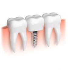 implante-dental-arquimbau