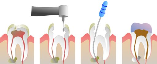 pasos-endodoncia-dental