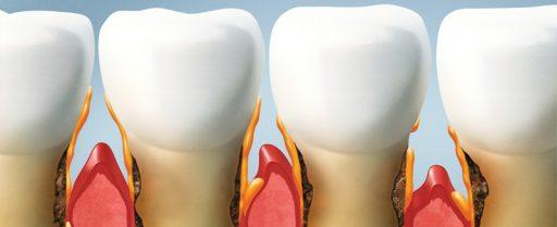 periodoncia-arquimbau