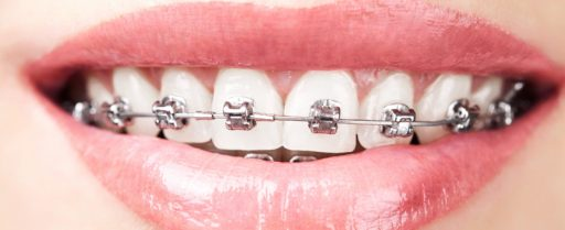 tratamiento-brackets-1