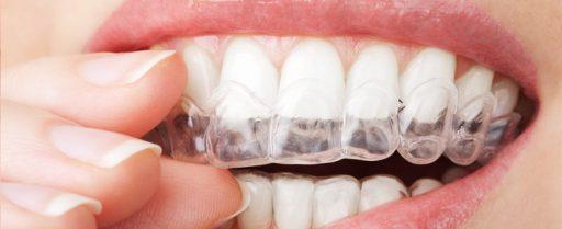 tratamiento-ortodoncia-invisalign-4