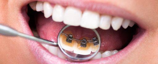 tratamiento-ortodoncia-lingual-2