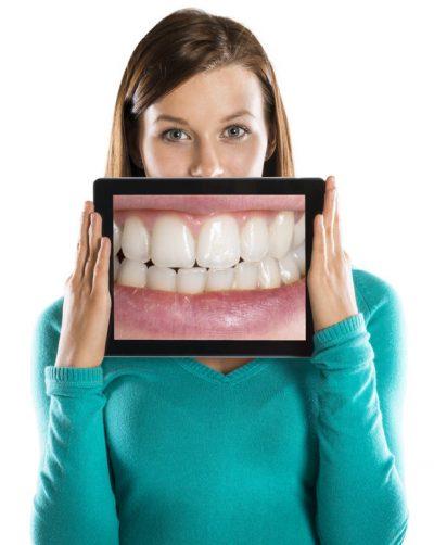 ventajas-endodonci-conservadora